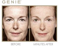 Genie antonella close up %28min full%29 copy w612 h406